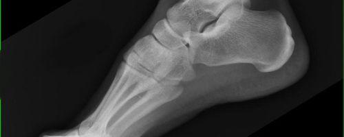 Методы диагностики плантарного фасциита: рентген, МРТ, УЗИ; терапия пяточной шпоры