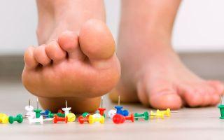 Болит пятка и больно наступать: в чем причина, и как правильно диагностировать недуг