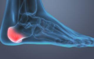 Воспаление пятки (пяточной кости): причины болей и способы лечения