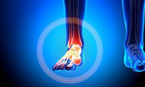Боли внутри пятки: причины, последствия и рекомендации по лечению