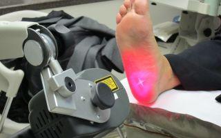 Лечение пяточной шпоры лазером: миф или избавление от неприятной проблемы