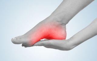 Причины и лечение пяточных болей с внутренней стороны стопы