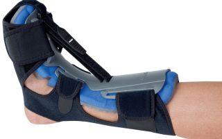 Ортопедические брейсы при пяточной шпоре: особенности применения, эффективность