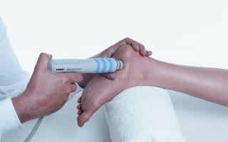 Лечение пяточной шпоры ударно-волновой терапией (УВТ)