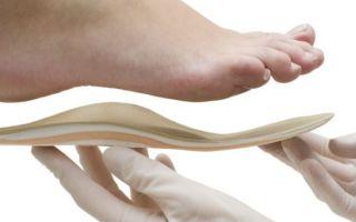 Ортопедические стельки от шпор на пятках важно правильно подобрать