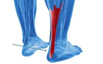 Если мучает боль в ноге выше пятки сзади – причины и способы лечения