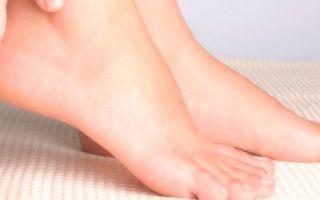 Причины сильных болей в пятке: разбор основных заболеваний