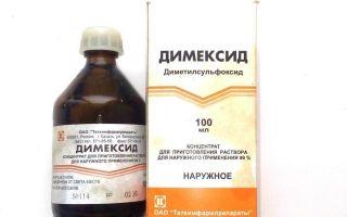 Симптомы и лечение пяточной шпоры в домашних условиях с применением Димексида