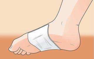 Обзор пластырей для лечения пяточной шпоры: китайский, перцовый и комбинированный