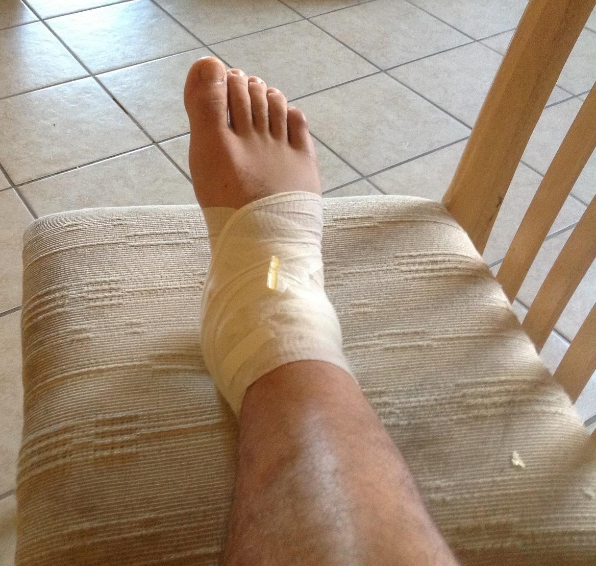 забинтованная нога