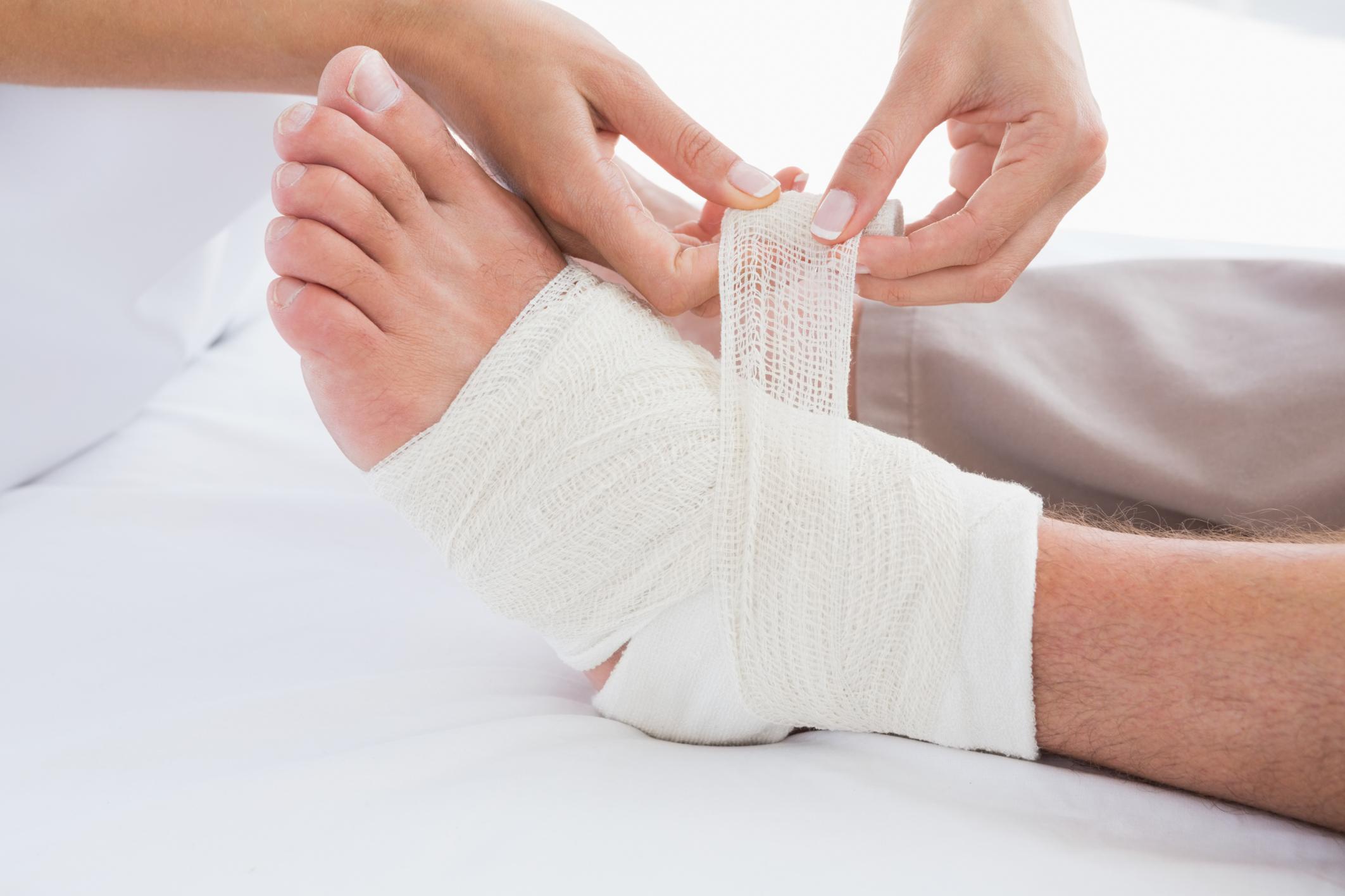 накладывание повязки на ногу