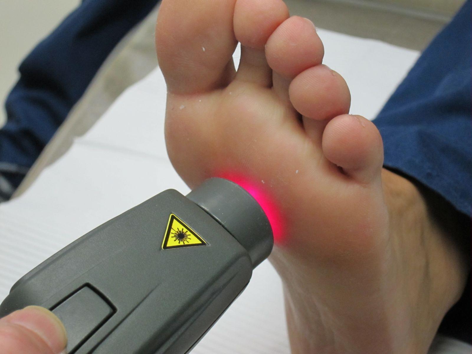 обработка лазером пятки