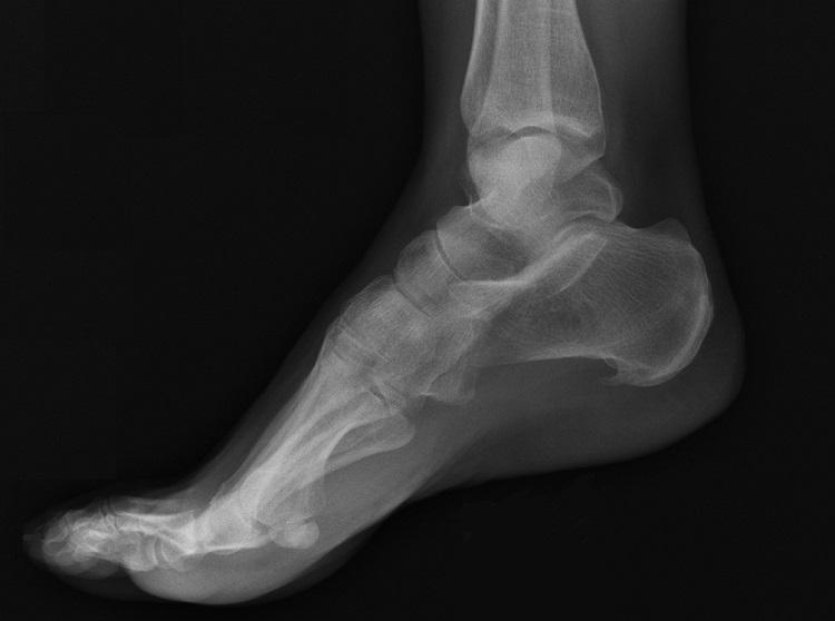 Рентген пяточной шпоры