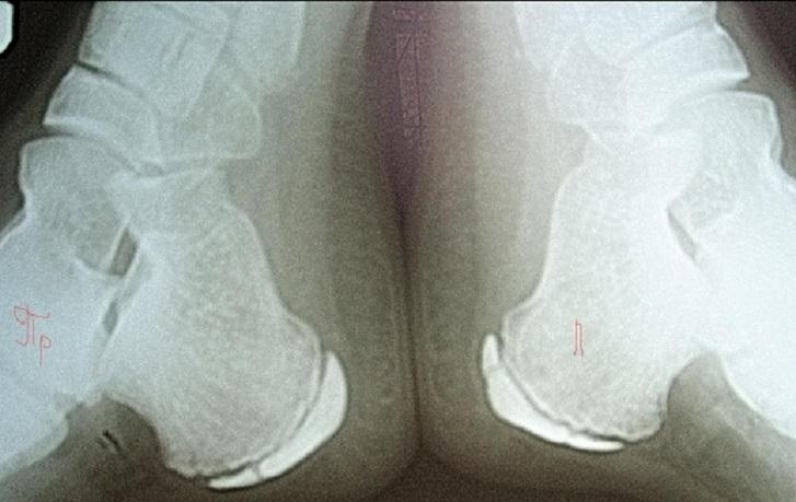 Апофизит пяточной кости