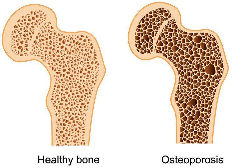 Остеопороз и нормальная кость